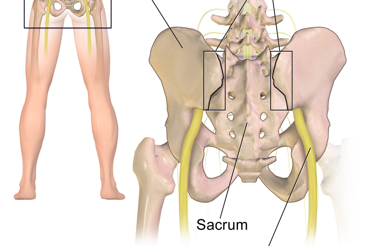 Do You Need Relief from Your Sciatica?